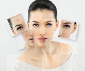 Biostimolazione viso collo decollete