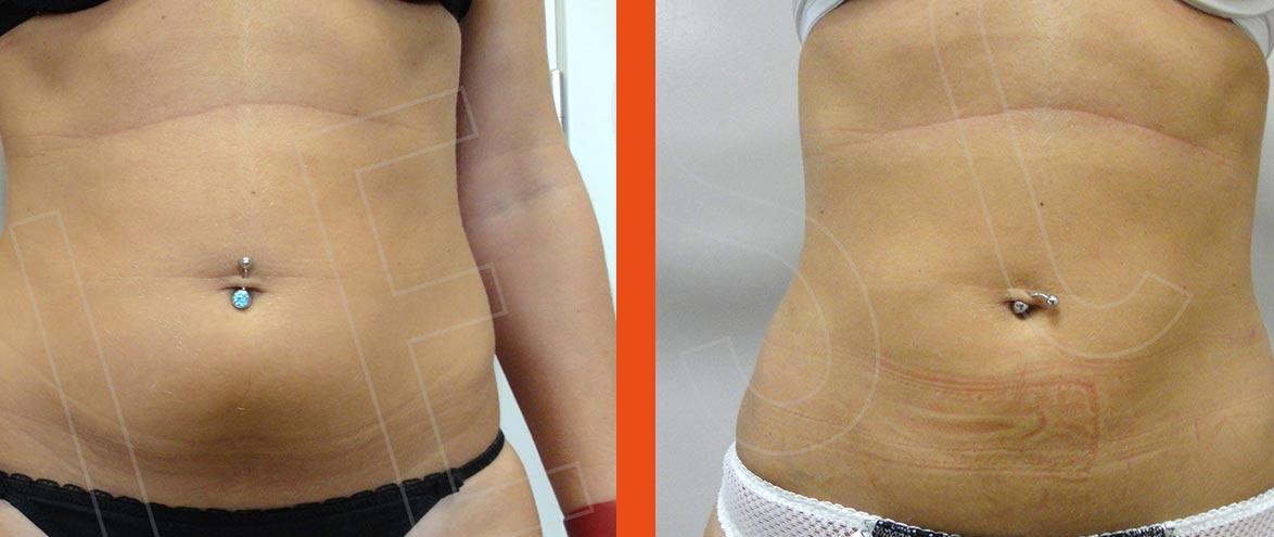 liposuzione sottocutanea roma
